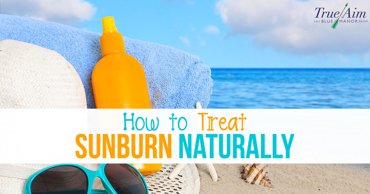 Sunburn can be a painful experience - use these three simple recipes to easily treat sunburn naturally.